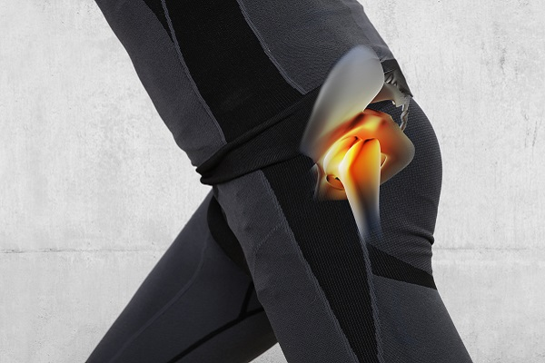 photo illustration of pain radiating from hip bone joints