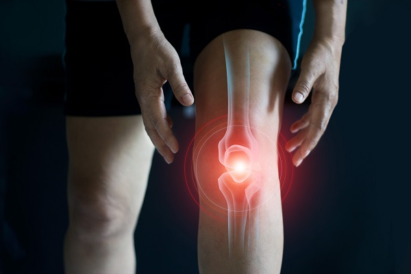 photo illustration of a knee joint radiating pain